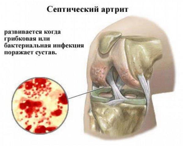 hüvelykujj artrózisos gyógyszerek fájdalom az összes ízületben és a hát alsó részén