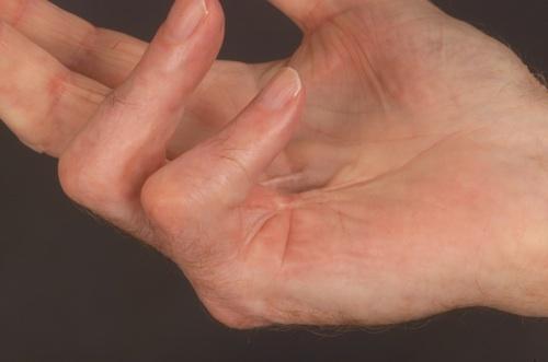 a vállízület inak gyulladásának kezelése homoktövis olaj ízületi kezelésre
