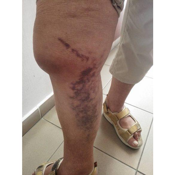 kenőcs ízületi sérülések esetén