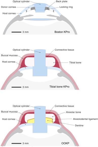 kenőcsék brachialis osteochondrosishoz