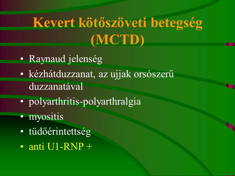 kevert kötőszöveti betegség (mctd) hogyan lehet enyhíteni a duzzanat a térdízület ízületi gyulladásával