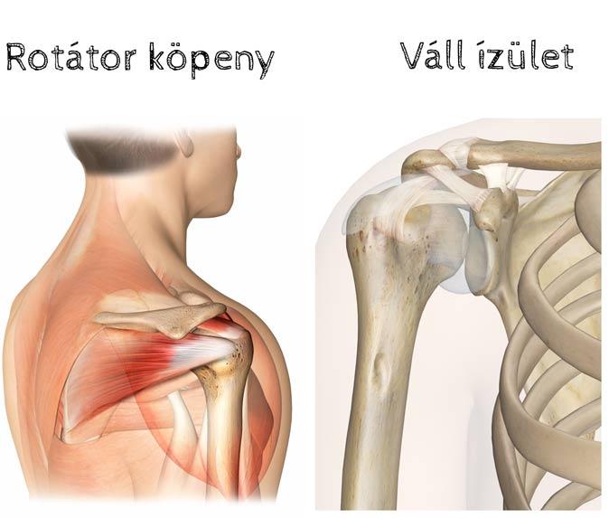 kórtörténet vállízület osteoarthrosis