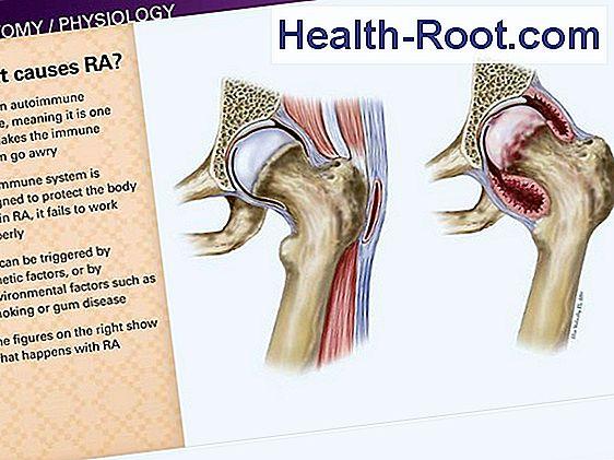 lapos lábak és az 1. fokú kezelés ízületi gyulladása)