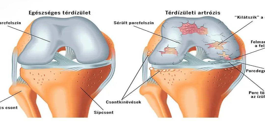 éles térdfájdalom ez az a térd artrózisának kezelése fóliával