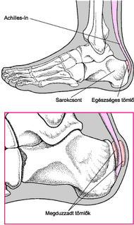 lövés fájdalom a boka járás közben)