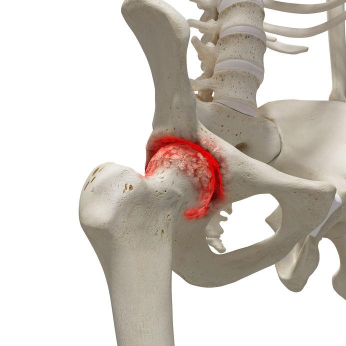 módszer a csípőízületek artrózisának kezelésére