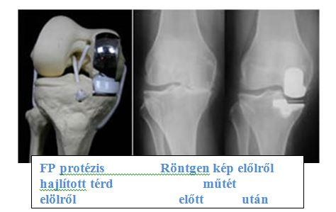 meniszcopathia térd artrosis