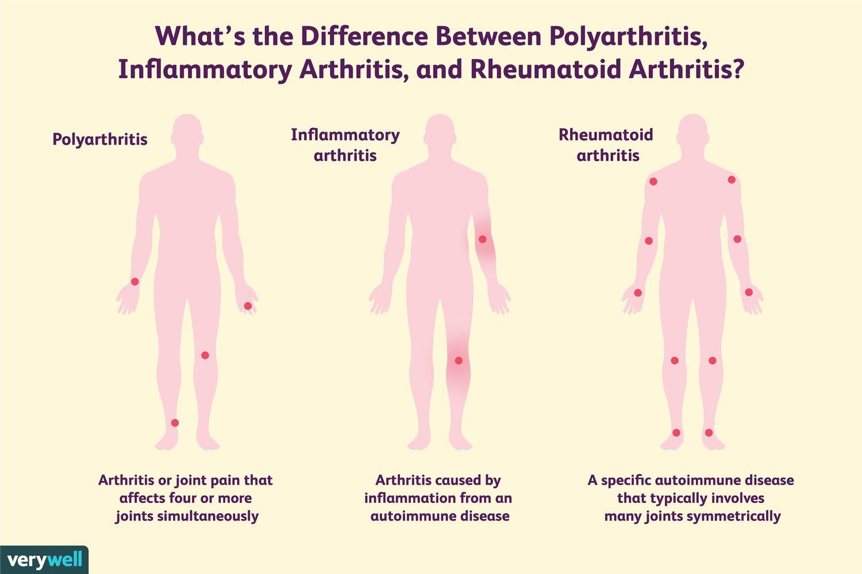 Polyarthritis-betegek 2 hónapon belül teljesen fájdalommentesek – Hamoni® Harmonizer