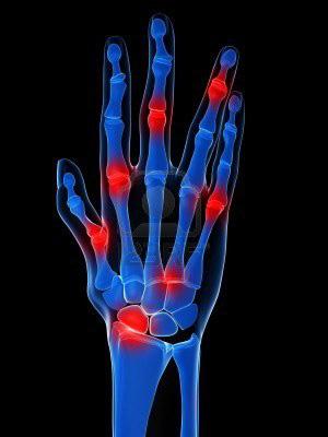 mi az ujjak ízületi gyulladása