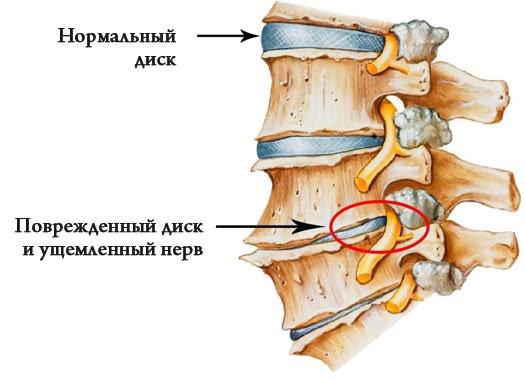 Injekciók a csípőízület coxartrózisával - Osteoarthritis
