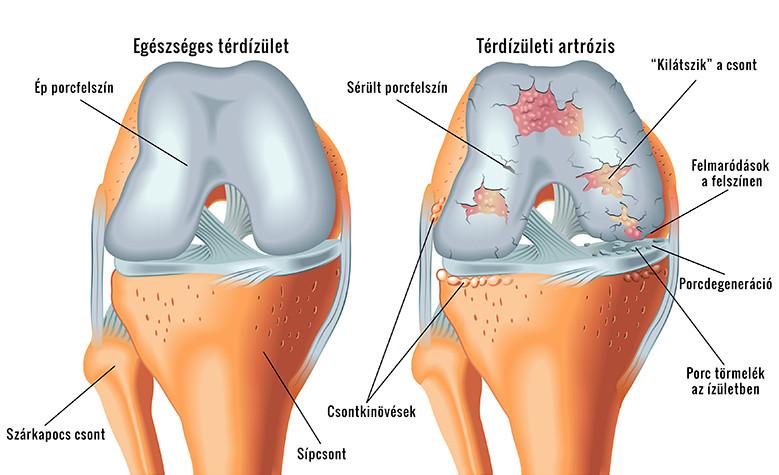 milyen tünetek vannak a térd artrózisában