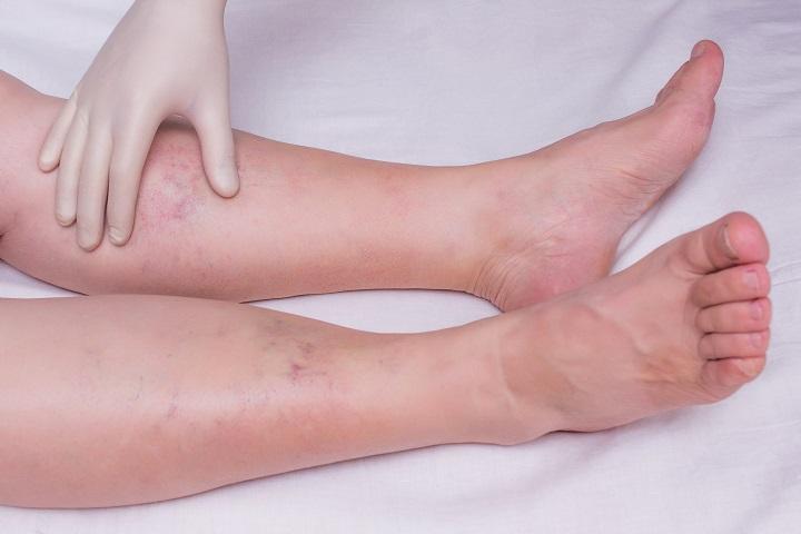 minek következtében a lábak duzzadnak a bokánál)