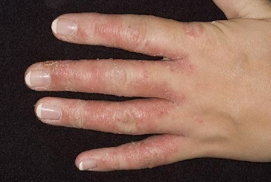 az ízületek fájnak a hideg víz után ketánok ízületi gyulladás esetén