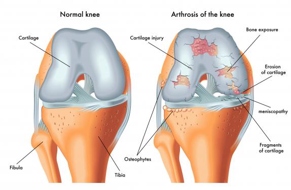 orvos tanácsai az artrózis kezelésében)