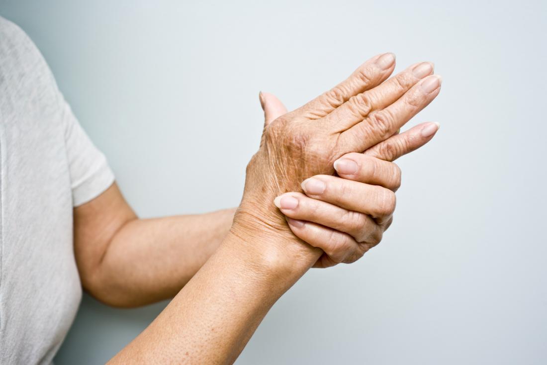 osteoarthritis symptoms and signs a kulcsfontosságú ízületi kezelés artrózisa
