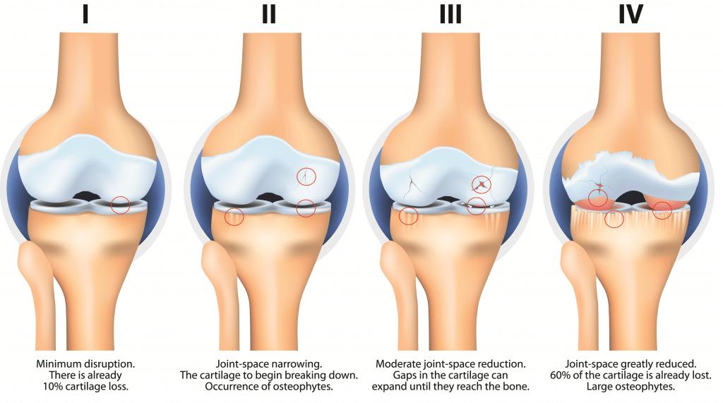 osteoarthritis symptoms knee)