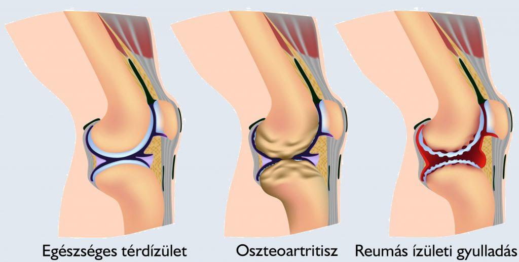 A térdízület csontritkulásához szükséges injekciók típusai - Masszázs