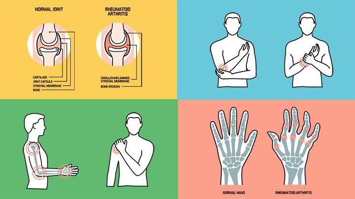 csípő és ágyék fájdalma fájdalom csak térdízületekben
