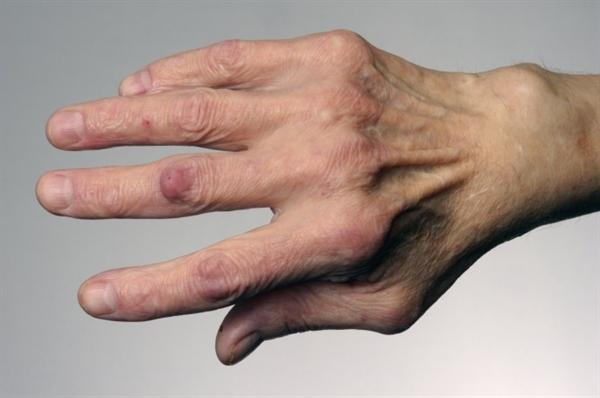 fájdalom a kis ízületekben, rosszabb este hatékony térdfájdalom-kezelés