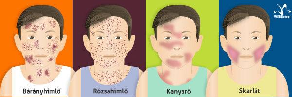 cseszlovak.hu | Betegségek