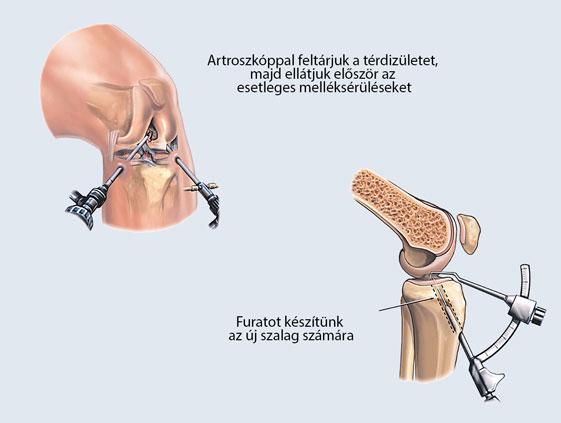 térd artroszkópos kezelése ízületek fáj az általános gyengeség