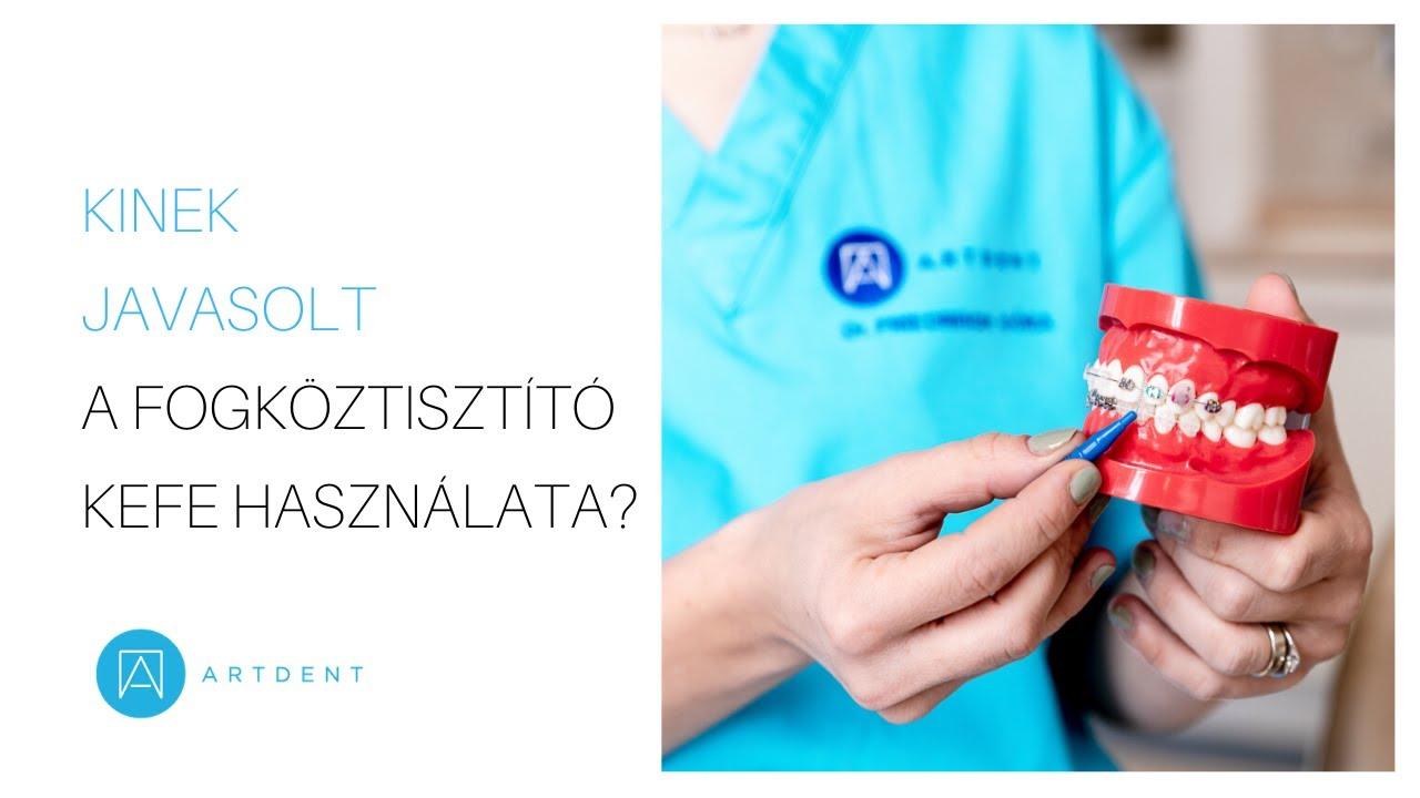 térd avito artrózisa)