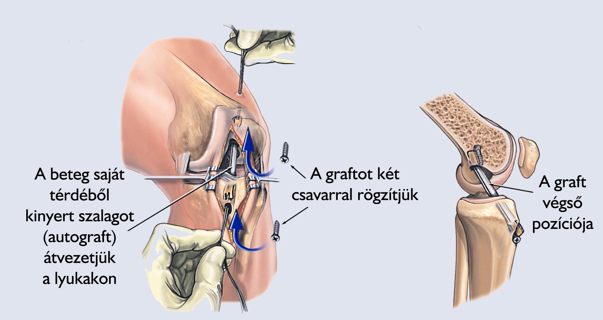 térd hypertrophia kezelés)