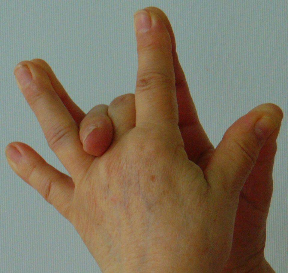 térdneurózis kezelés)