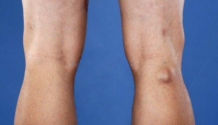 térdpárnák ízületi fájdalmakhoz csípőízület fájdalma lábak fordulásakor