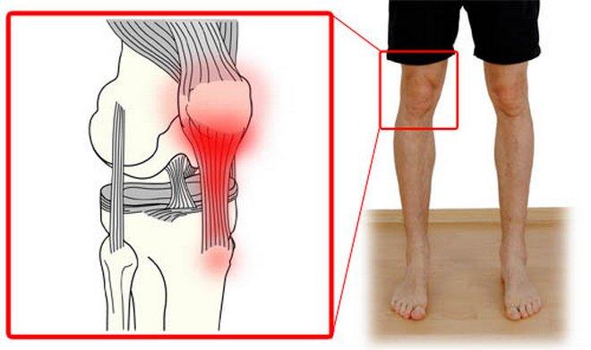 térdízület kezelési tabletták osteochondrosis