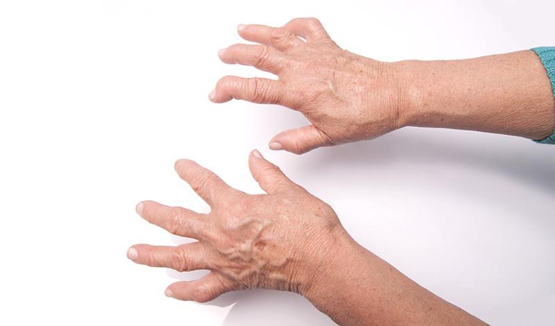 ujjak artritisz kezelése