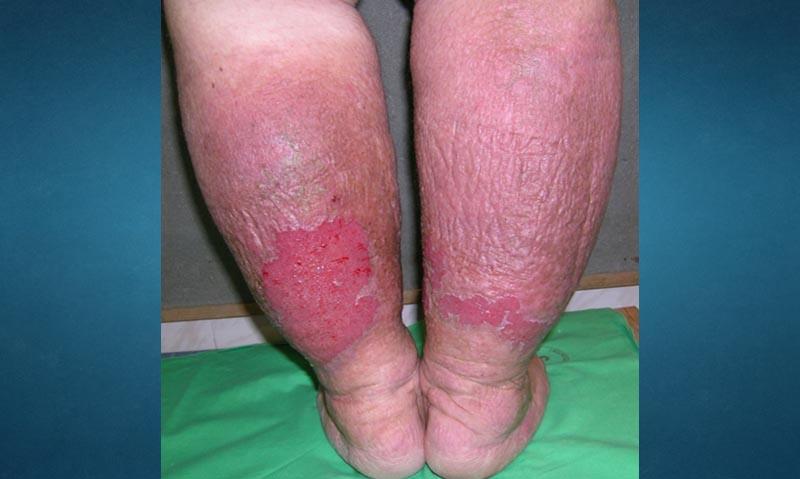 vizes dagadt láb kezelése)