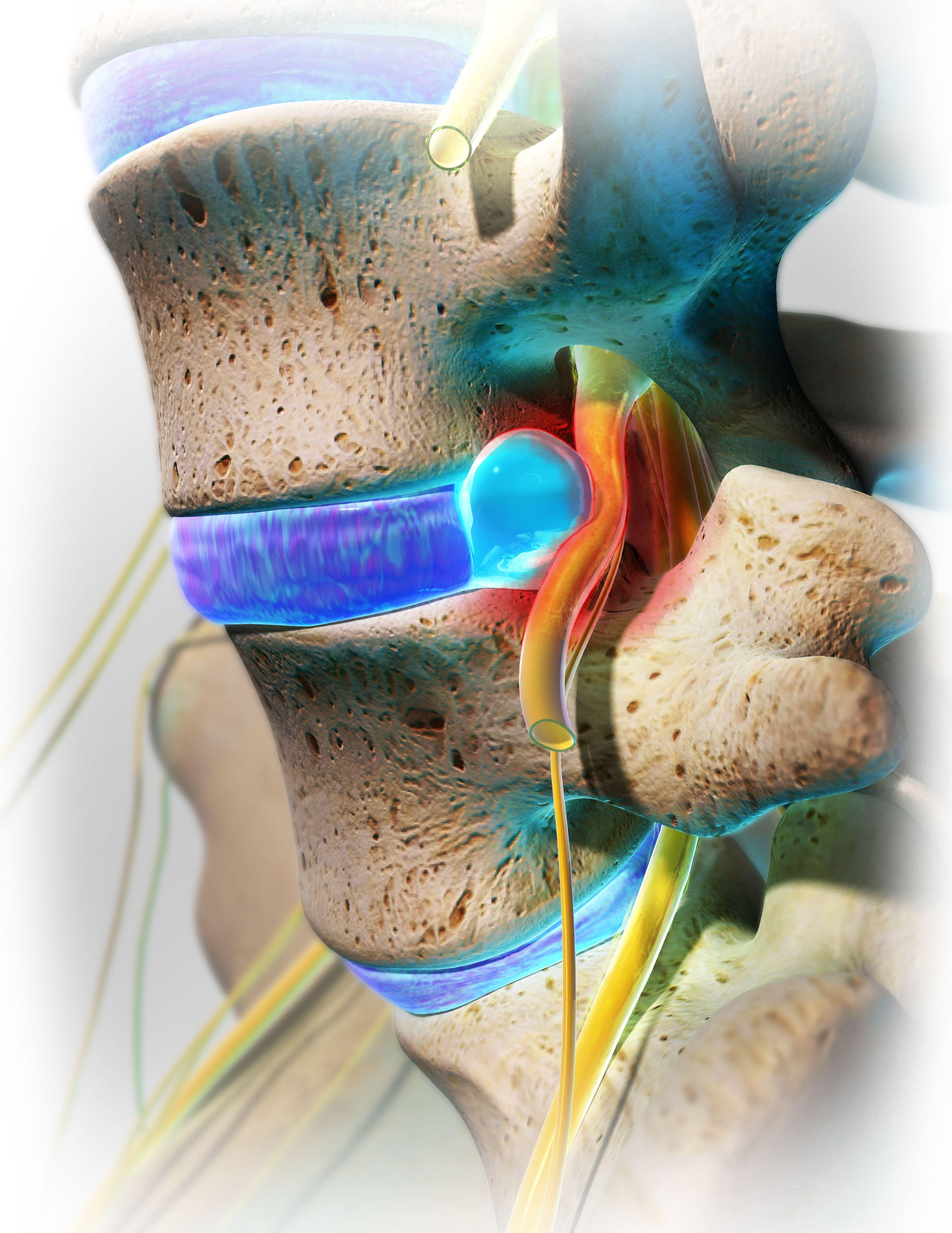 vyprosal ízületi fájdalommal a legjobb az artrózis kezelésében