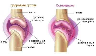 ízületek deformáló artrózisának kezelése)