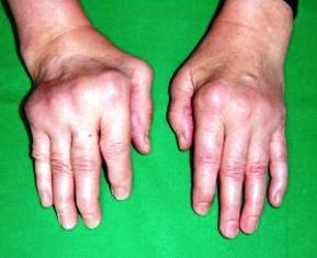 ízületi betegségek rheumatoid arthritis