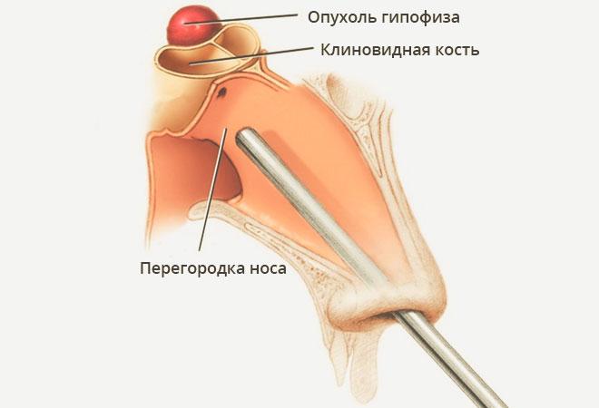 ízületi fájdalom hormonális kudarca)