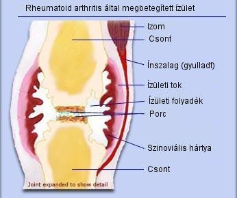 ízületi fájdalom hormonok szedésekor)