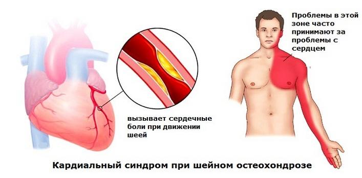 csípőízületi gyulladás kezelése fájdalom a jobb kéz hüvelykujjának ízületeiben