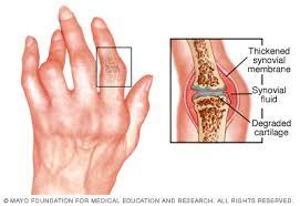 térd osteosclerosis kezelés a csigolyák együttes ízülete 2 fokkal