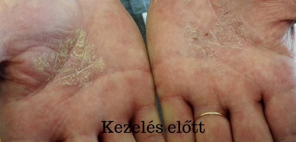 ízületi gyulladás a kéz kenőcs kezelésében