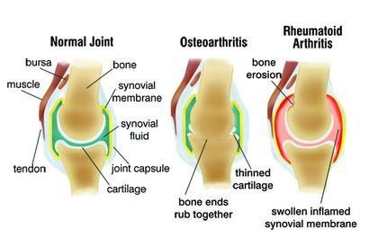 ízületi gyulladás térd artrózissal