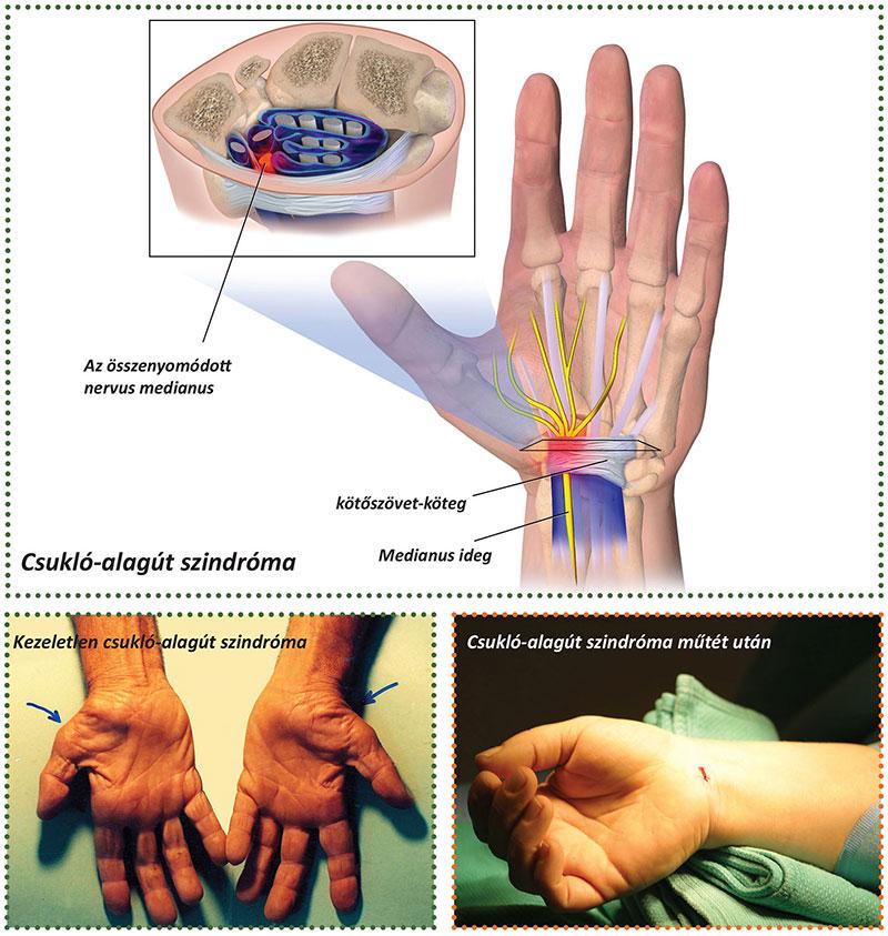 a csukló artrózisának mértéke)