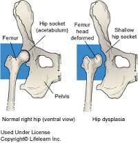 1. fokú kezelés csípő-diszplázia