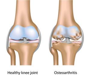 fájdalom az ujjak ízületein ízületi betegség ízületi arthrosis