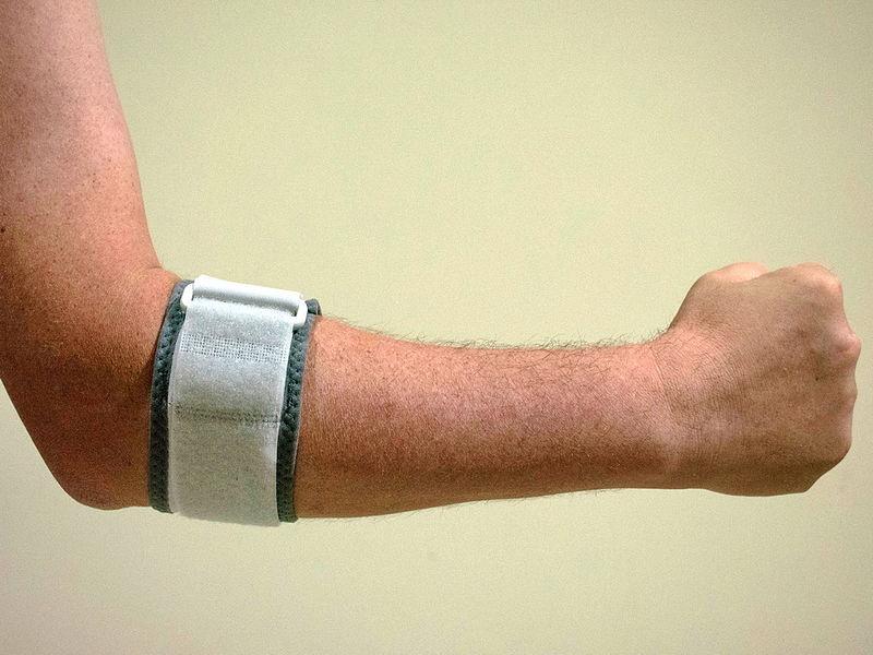 gyógyulás a könyökízület sérülései után a kéz ízületei fájnak, mint a kenőcsök kezelése
