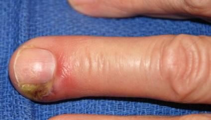 Fájó nagy lábujj: okok, tünetek, kezelés - Zúzódások July