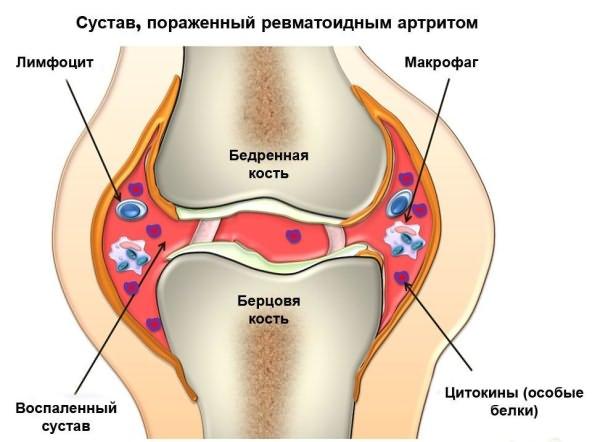 nsaid-ok a csípőízület fájdalmához