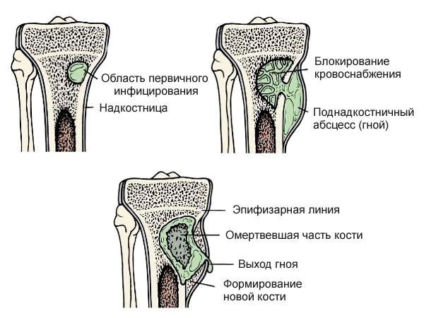 térdízület tünetei a ragasztások gyulladása)