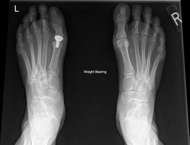 osteoarthritis first mtp joint icd 10)