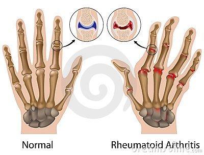 a kezek ízületei szimmetrikusan fájnak
